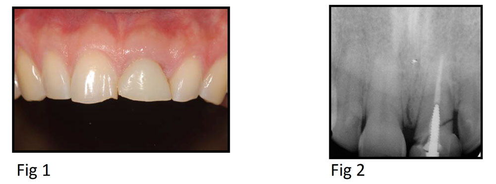 Using an Angled Screw for Retained Implant Restoration and Leveraging a HIPAA-Compliant Texting Solution to Enhance Referral, Planning, Coordination and Documentation