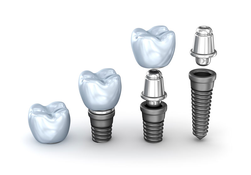 Image Dental Implants